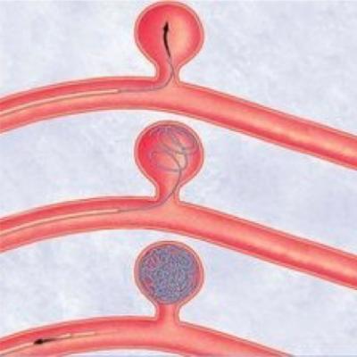 Ruptured cerebral aneurysms